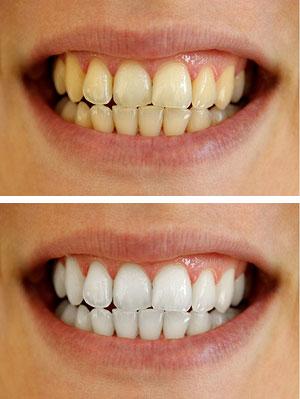 bleka tänderna hos tandläkare pris